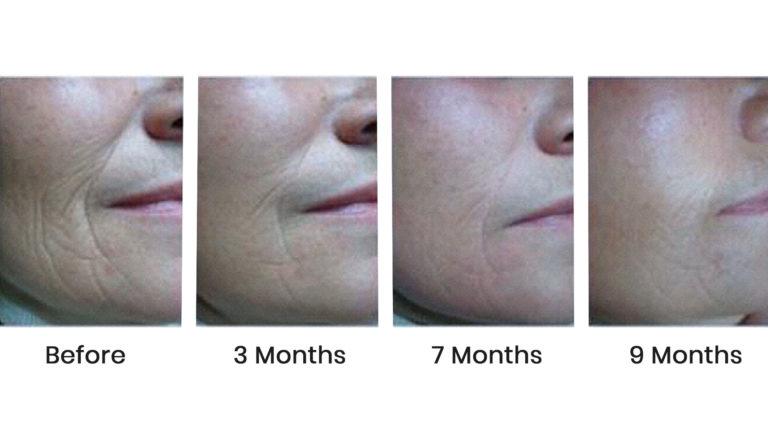 Skin Tightening After 9 Months