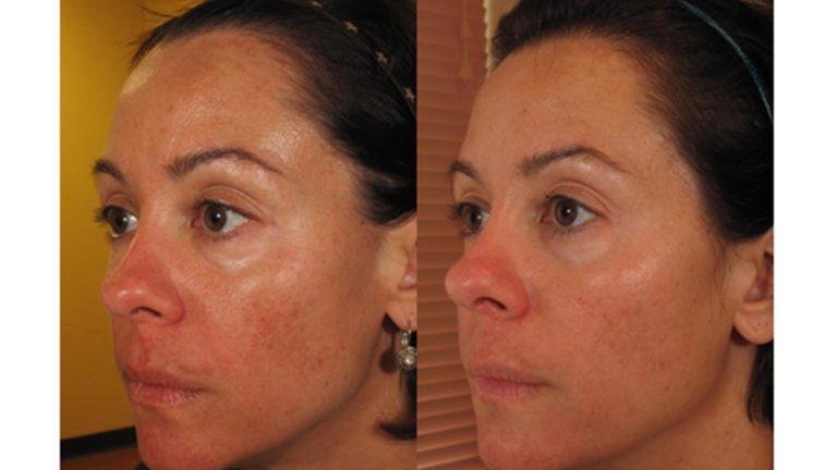 Skin Tightening Patient 5