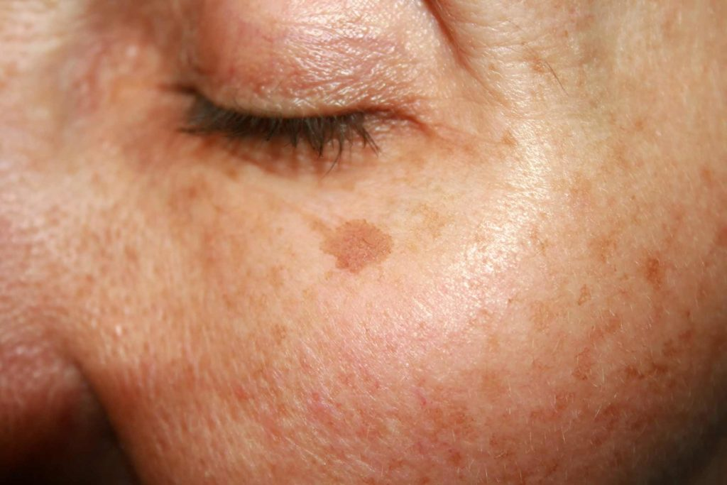 Pigment and Ageing Spots